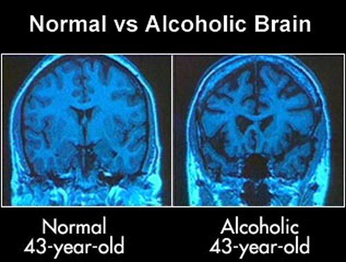 Alcohol Damages The Brain